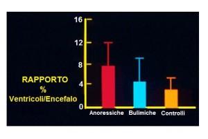 Modificazioni morfologiche dell'Encefalo in 2 Disturbi dell'Alimentazione e della Nutrizione