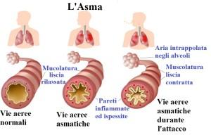 Modifiche nelle vie respiratorie dell'asmatico