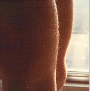 Nell'Anoressia si ha sviluppo di lanugo negli arti