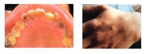 Alcune coneguenze del vomito autoindotto. Distruzione dello smalto dentario e segno di Russel sulla mano