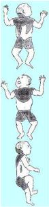 Distribuzione del tessuto adiposo bruno nel neonato