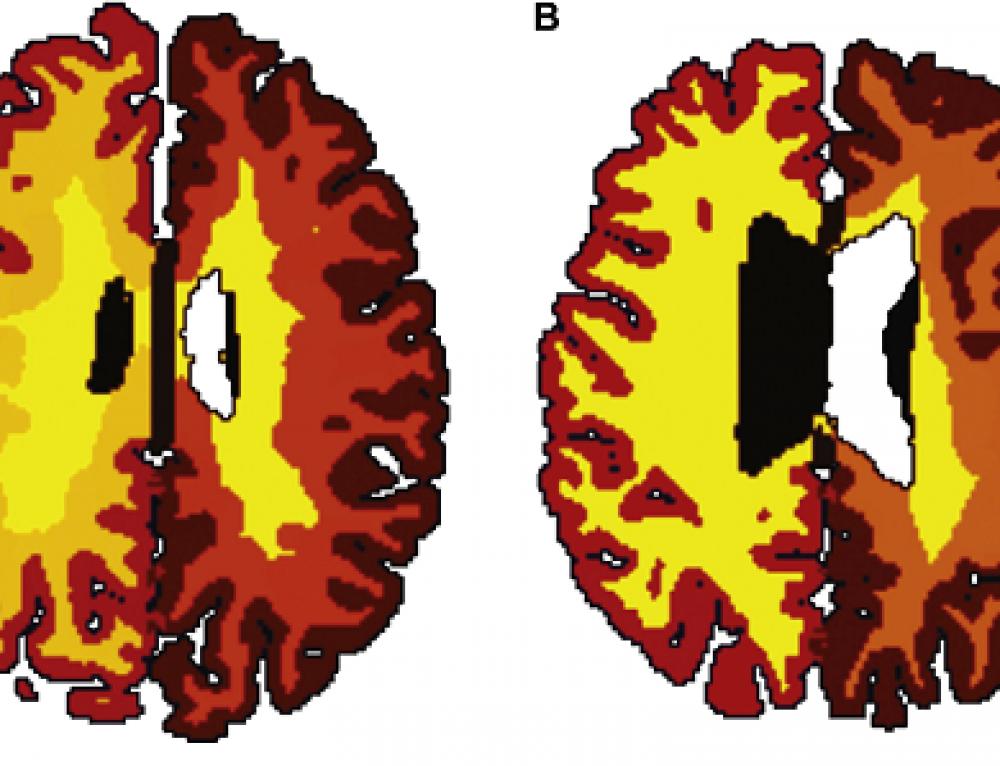 Il cervello degli obesi invecchia prima.