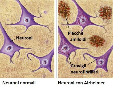 Alzheimer e Zona