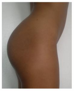 No alla Cellulite